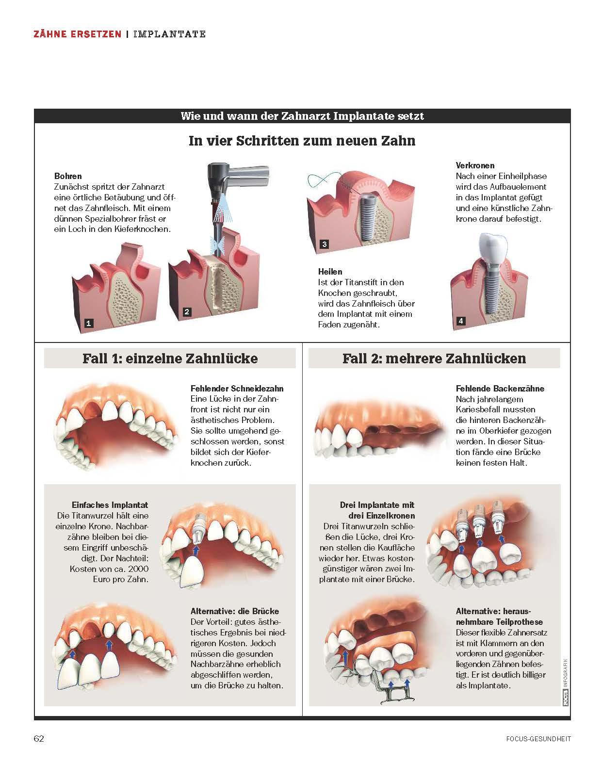 Implantologie - Zahnarztpraxis Dr. Teichmann und Dr. Wienands ...